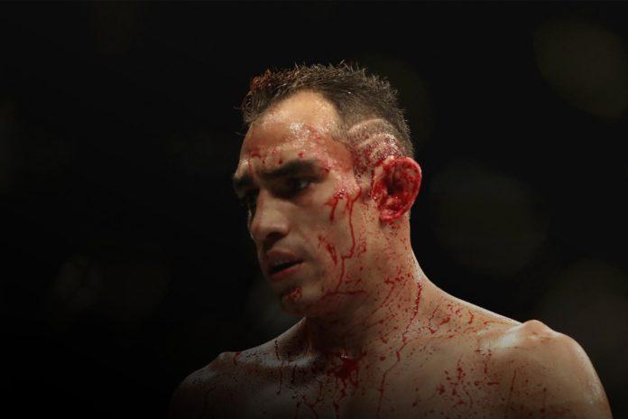 UFC Tony Ferguson